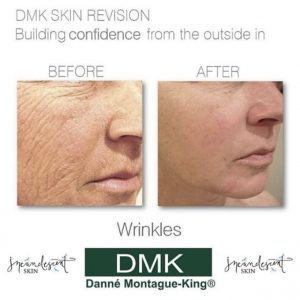 Tucson Skin Revision and Non-Surgical Face Lift Skin Correctives.  Reverse signs of aging and leave with truly vibrant skin.