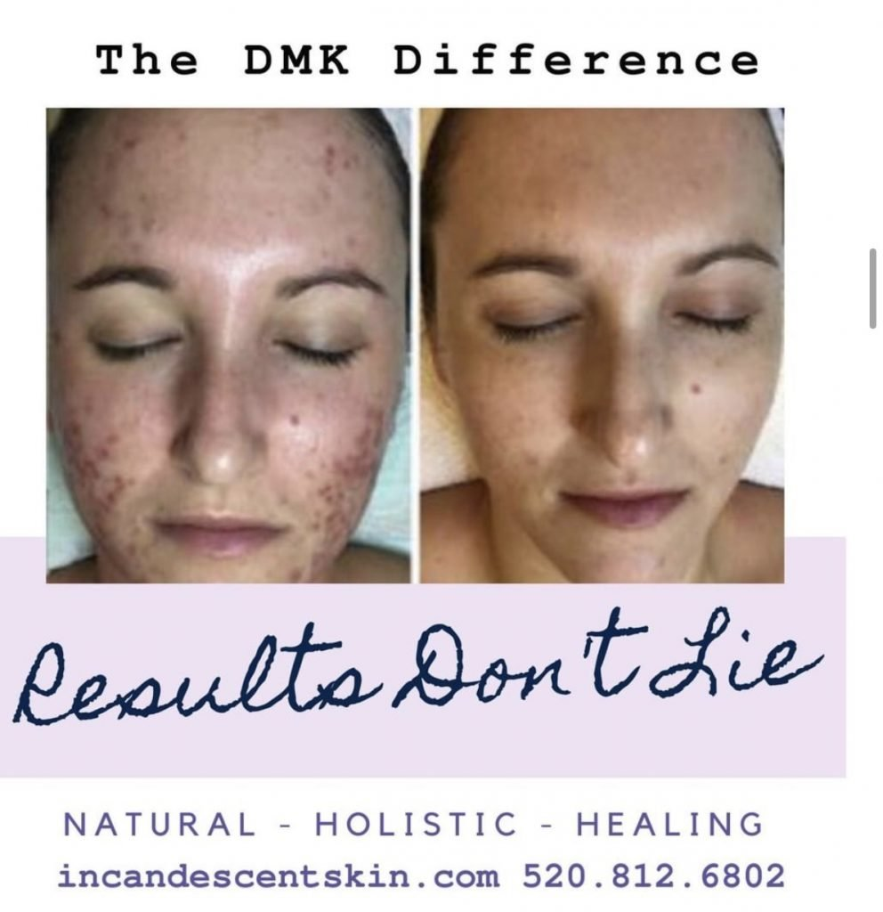 dmk before and after photo.  DMK enzyme, nutrient rich enzyme mask, seba e, herb & mineral mist, deep pore, best luxury skincare in Tucson.  Best facialist in Tucson. Tucson Facial Spa.