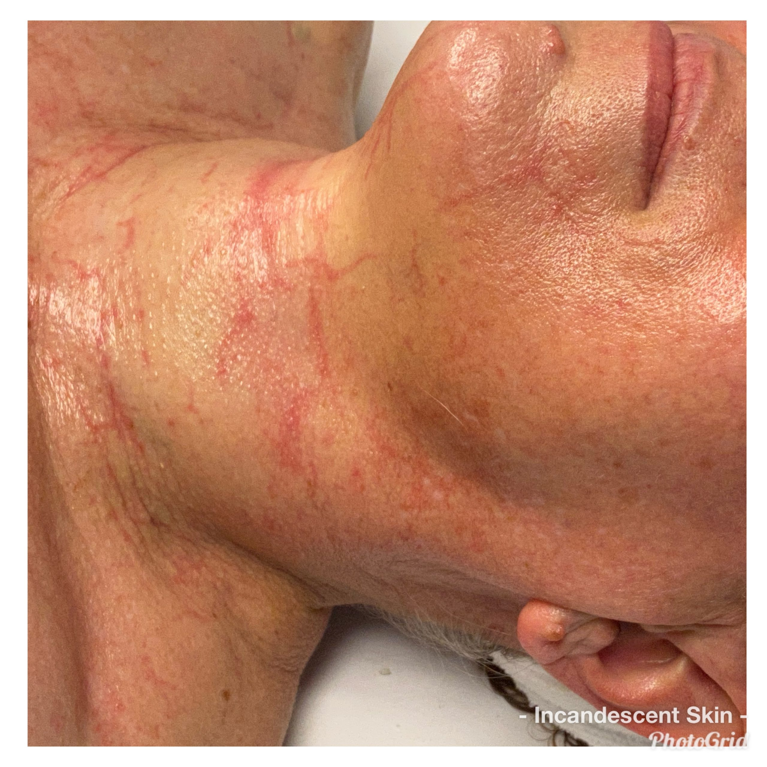 3 Factors to Improve your Skin