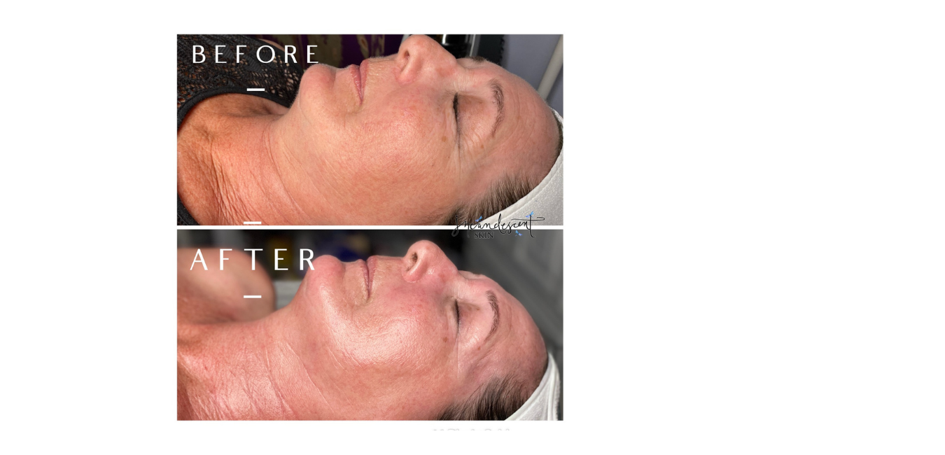 Tucson's #1 skin revision clinic